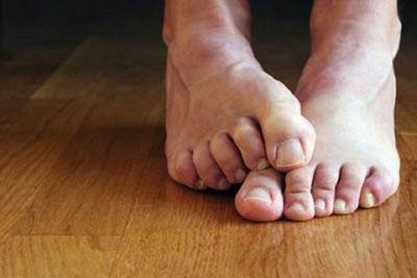 ساده ترین راه حل ها برای خلاصی از تعریق پا
