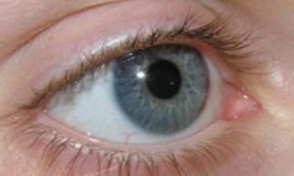رایج ترین باورهای غلط درباره چشم